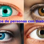 ¿Como afecta la diabetes la visión?