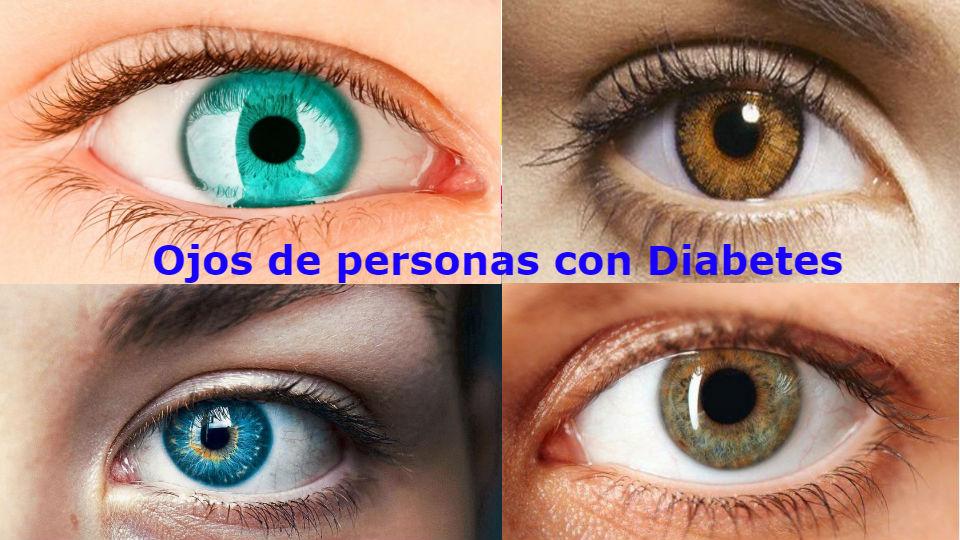 La diabetes y los ojos La diabetes esta directamente relacionada a los defectos oculares de que sufren personas con diabetes. Se presenta una visión borrosa