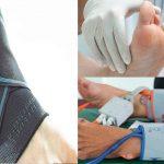 Moderno tratamiento contra el pie diabetico