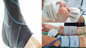 ¿Cuáles son los síntomas y tratamientos contra el pie diabetico?El pie diabetico es una enfermedad que día a día va en aumentos debido a la neuropatía