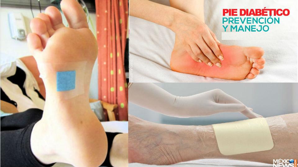 Resultado de imagen para manejo de ulceras diabeticas