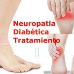 Neuropatía Diabética, Causas, Síntomas y Tratamiento