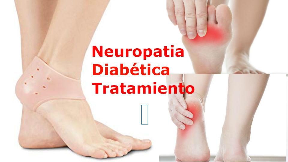 ¿Cuál es el diagnostico de una neuropatía diabética? El medico especialista debe realizar un examen físico para poder determinar una neuropatía diabética.