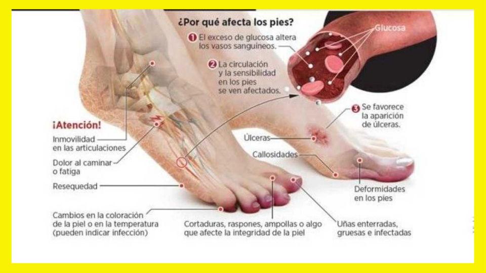 La diabetes y los pies Tener diabetes afecta los pies de muchas maneras debido a problemas en la glucosa esto suele pasar en diabéticos tipo 1 y 2.