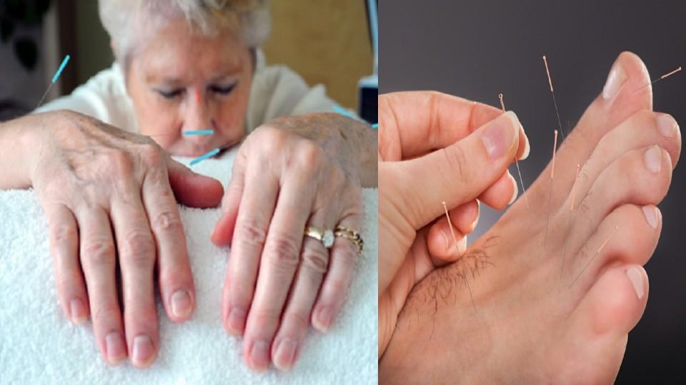 Acupuntura para la Diabetes La acupuntura es un método terapéutico muy utilizado y efectivo que contribuye con la diabetes tipo 1.Este gran método tiene com