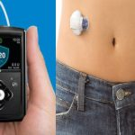 El Páncreas Artificial para Diabéticos
