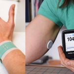 Chip Sensor para detectar la Diabetes Tipo 1