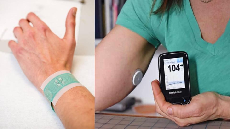 Crean un chip sensor para el diagnóstico temprano de la diabetes tipo 1 La diabetes tipo 1 es un padecimiento que afecta las células beta, encargadas de